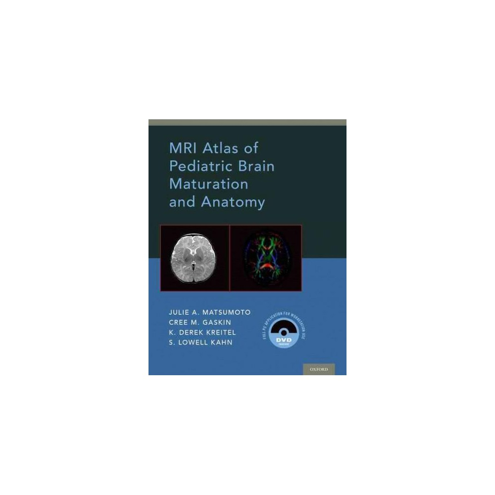 Mri Atlas of Pediatric Brain Maturation and Anatomy (Hardcover ...