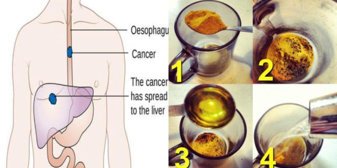 why turmeric, black pepper and olive oil make for a powerful cancer-fighting…