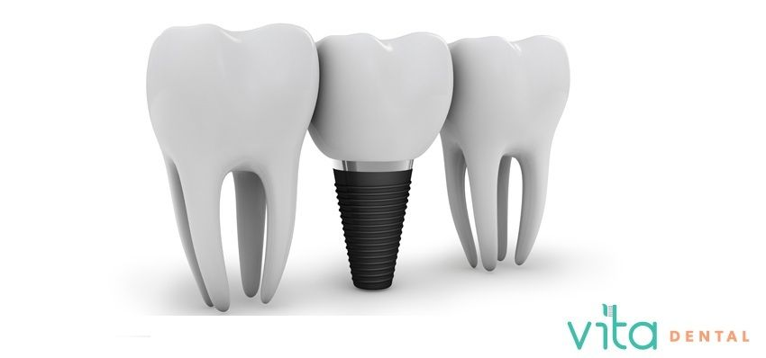 If you are facing an issue with missing teeth so dental implants - interradicular bone