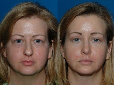 bulbous nose on nose tip pictures rhinoplasty nose job