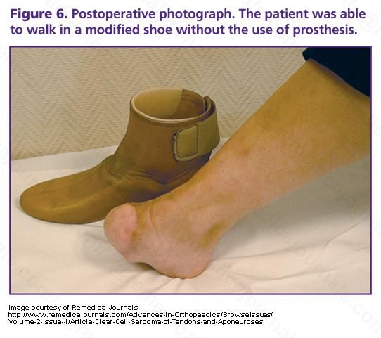 amputation prothesis Information about amputation, including why and how it's carried out, recovery and rehabilitation, prosthetics, stump care and possible complications.