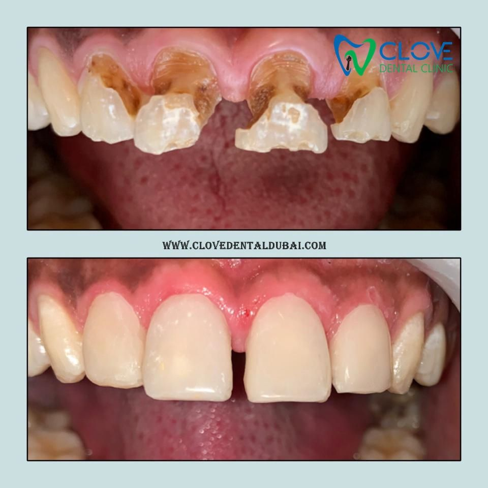 A very happy and satisfied patient After finishing Veneers treatment @Mr Jushua, Total Treatment :- 1 hour 22 minutes. --- Appointment's are open Now. Call :- 04 3435 424 Whats App :- 058 965 6295. --- #clovedentalclinic #bestcavitydoctors #dxbdentistry #happy #patient #inofficeteethwhitening #homewhitening #opalescence #whiteningtrays #opalescenceboost #oralhealth #brightersmile #healthiersmile #smile