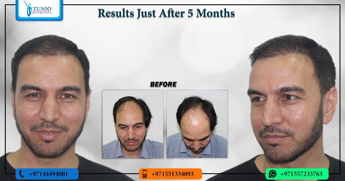Park Art|My WordPress Blog_Fue Hair Transplant After 1 Month