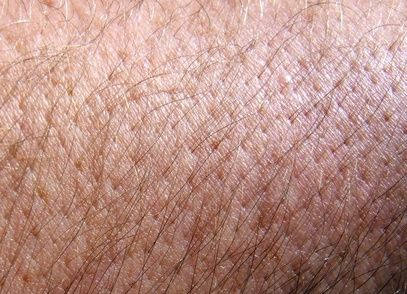 Home Remedies for Aging Skin -Moisturize -Avoid the Sun -Stay Away