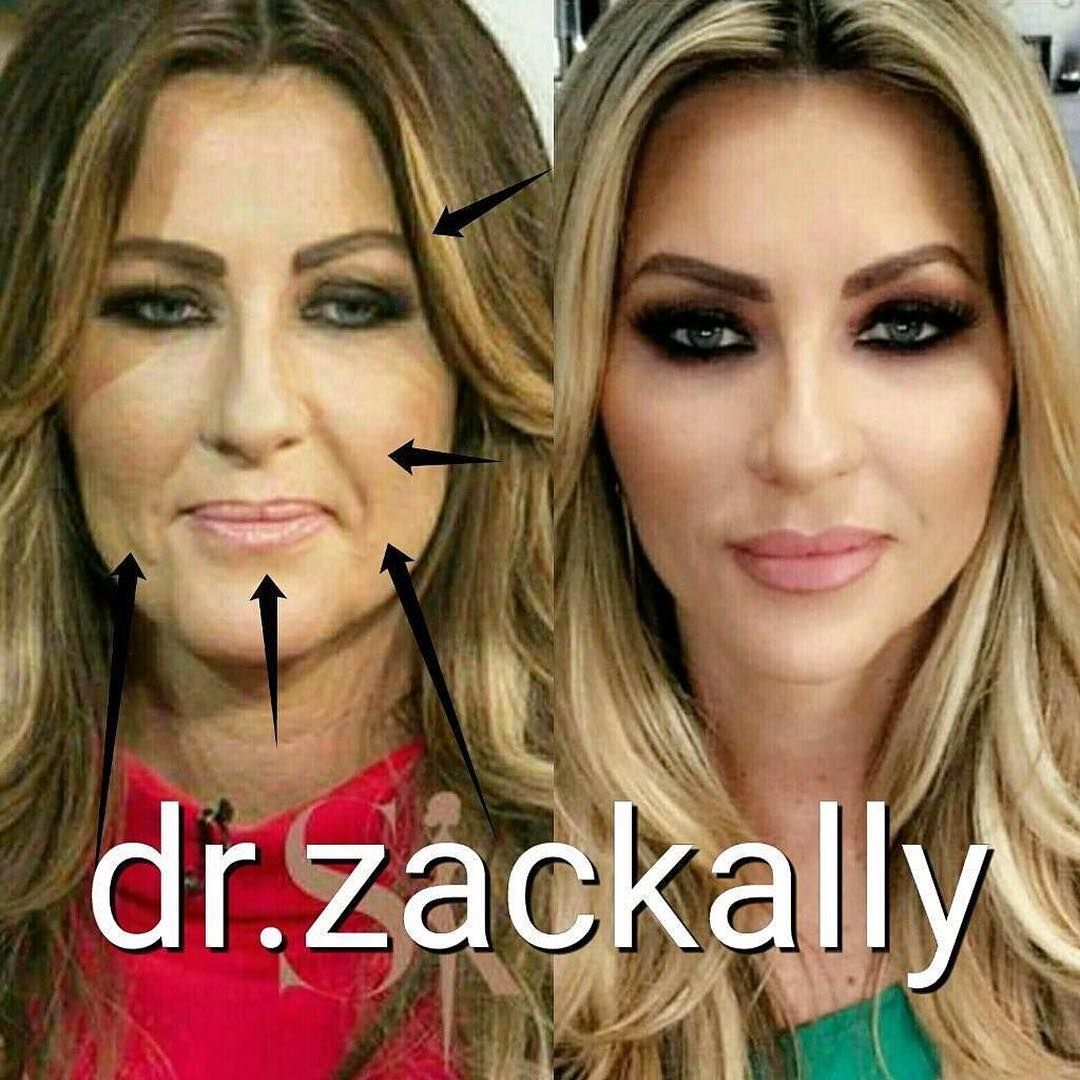 Celebrity Transformation Before And After Pictures Of My Lovely Client Celebrity Makeup Transformation Eyebrow Lift Botox Celebrity Makeup