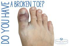 How Do You Know If You Ve Got A Broken Toe Here Are Some Key Warning Signs Http Www Triadfoot Com 2015 07 07 Broken Broken Toe Broken Big Toe Fractured Toe
