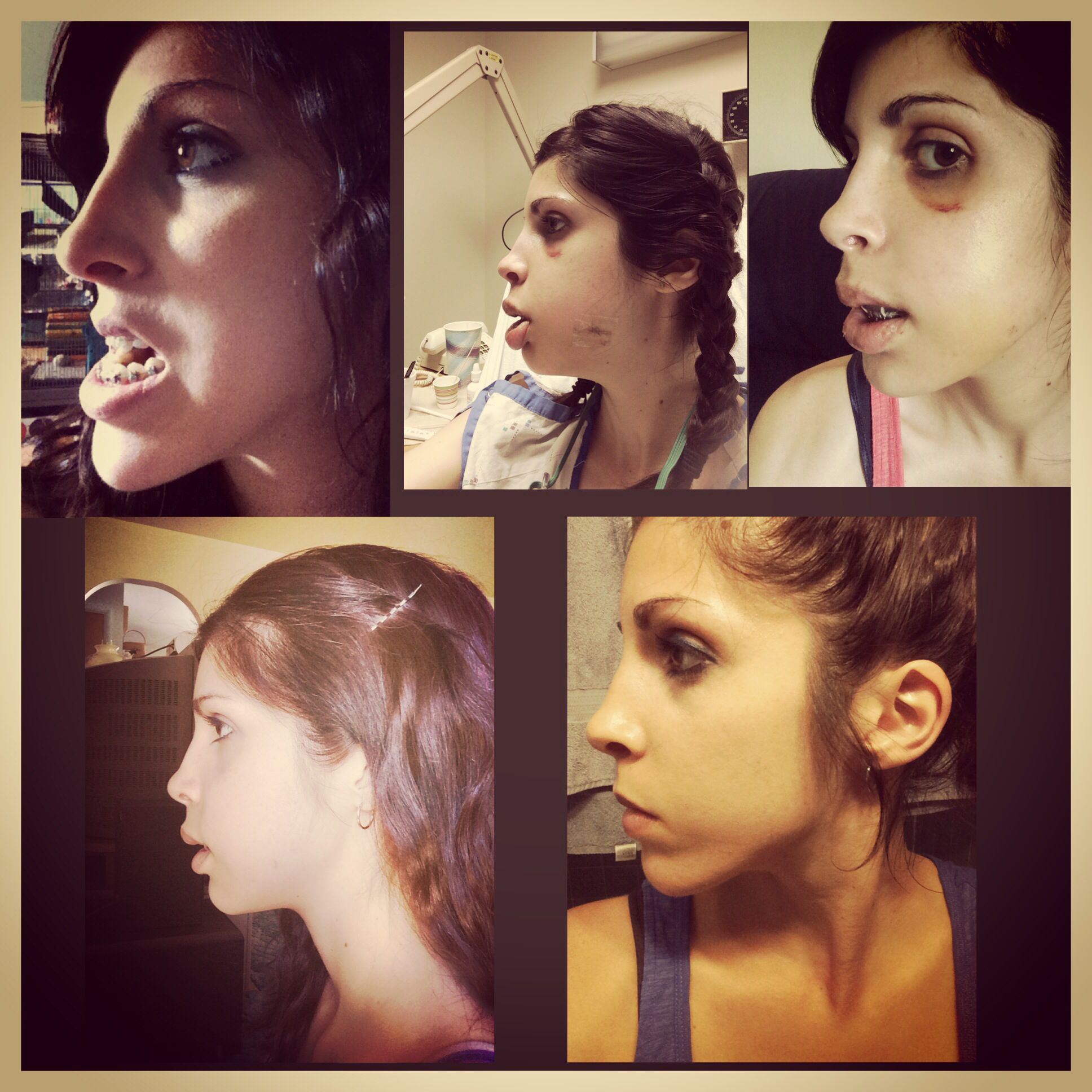 Double jaw surgery before and after. Maxillofacial surgery ...