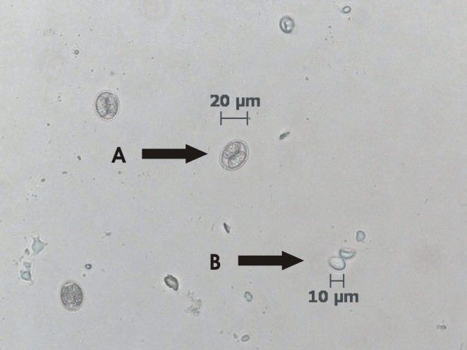 Isospora oocysts and Giardia cysts 20X objective