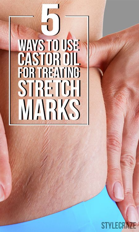 9 Simple Ways To Use Castor Oil For Treating Stretch Marks Bath
