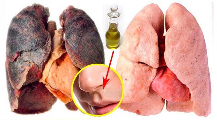 Este efectivo truco natural te ayuda a dejar de fumar y cuida tus pulmones