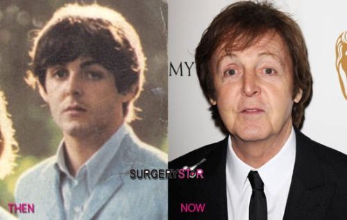 The Legend Paul McCartney Addicted To Plastic Surgery Surgerystar