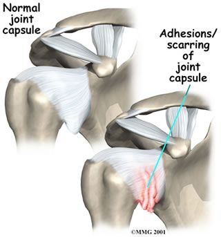 Pin On Anatomy For Massage