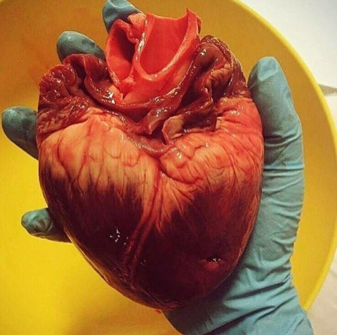 Pin de Esmeralda en ...medicine... | Pinterest | Medicina, Anatomía ...