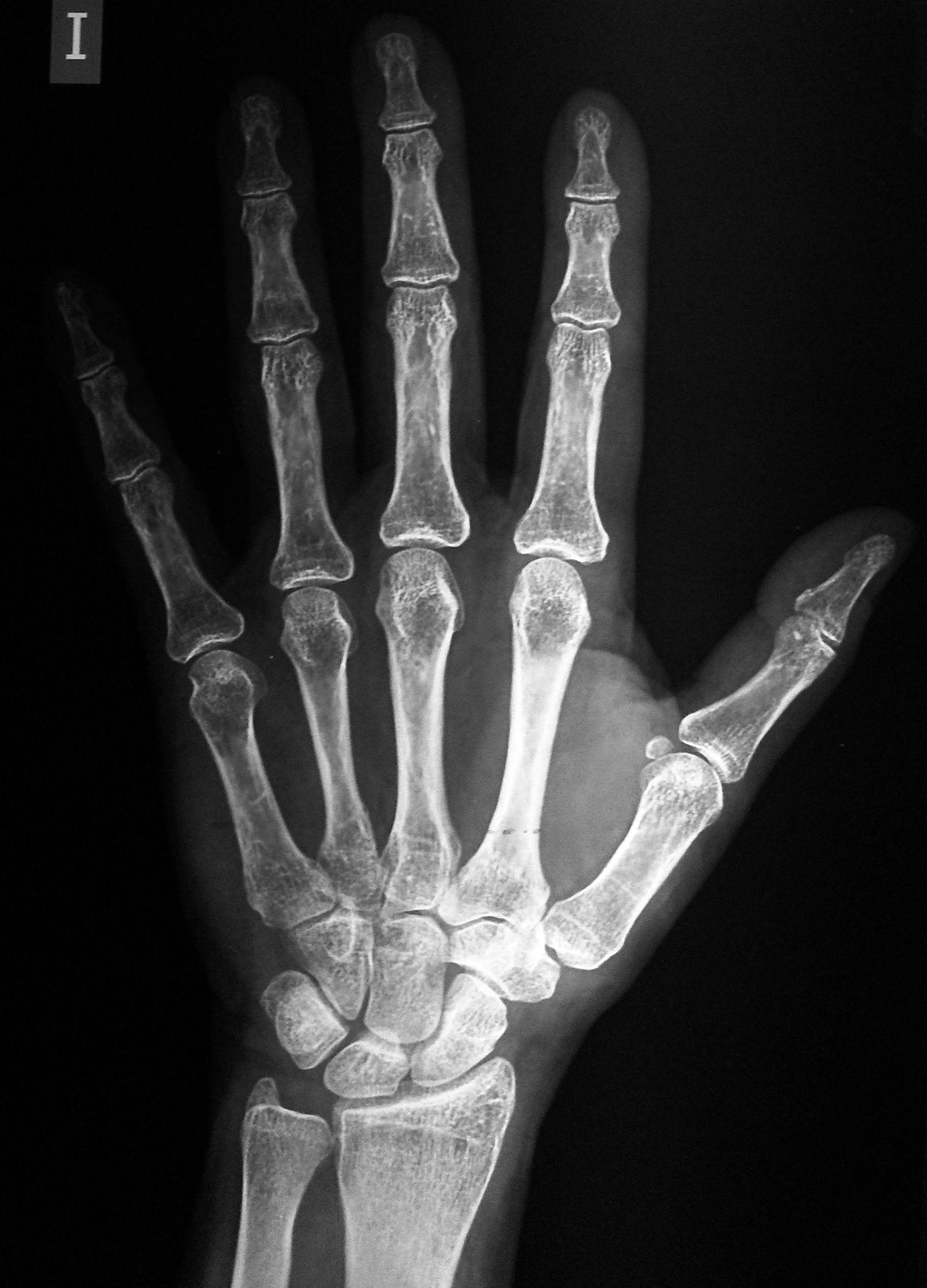 Sdc16181 Jpg Tatuaje Buho Radiografia Manos