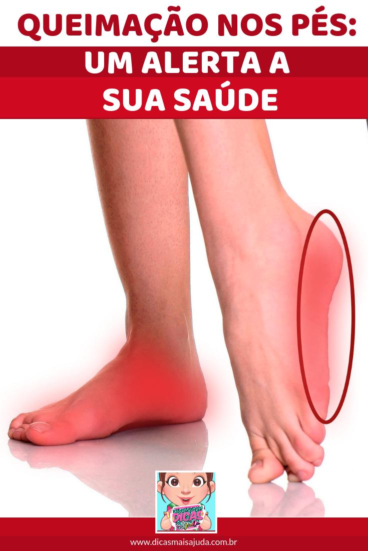 Nos de tratamento pés da queimação sensação