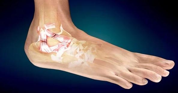 ما هى مضاعفات تمزق أربطة الكاحل Twisted Ankle Sprained Ankle Ankle Ligaments