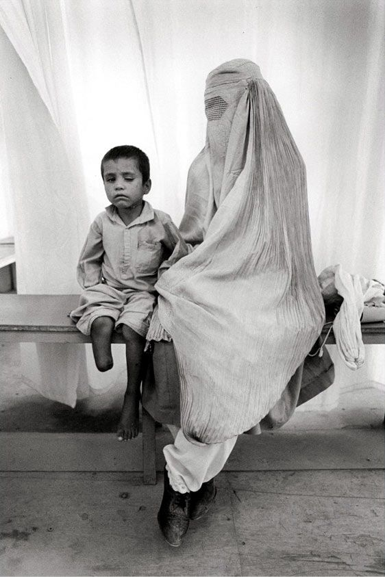 Gervasio Sánchez - Landmine victims. Afghanistan. S). @John Hanscom via Raquel Candanedo-Luciano