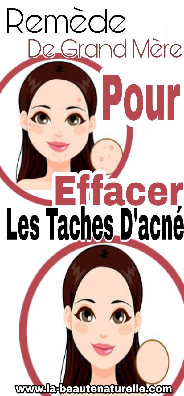 Remède de grand-mère pour éliminer les taches d'acné