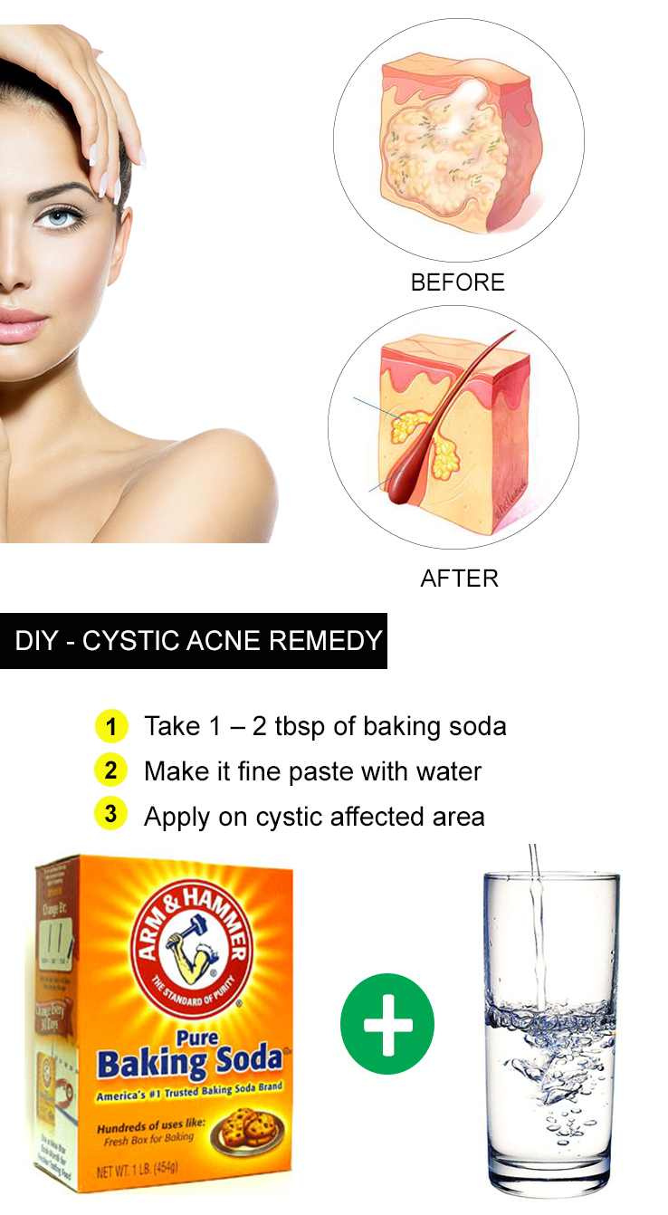 15 Diy Home Remedies For Cystic Acne Cystic Acne Remedies