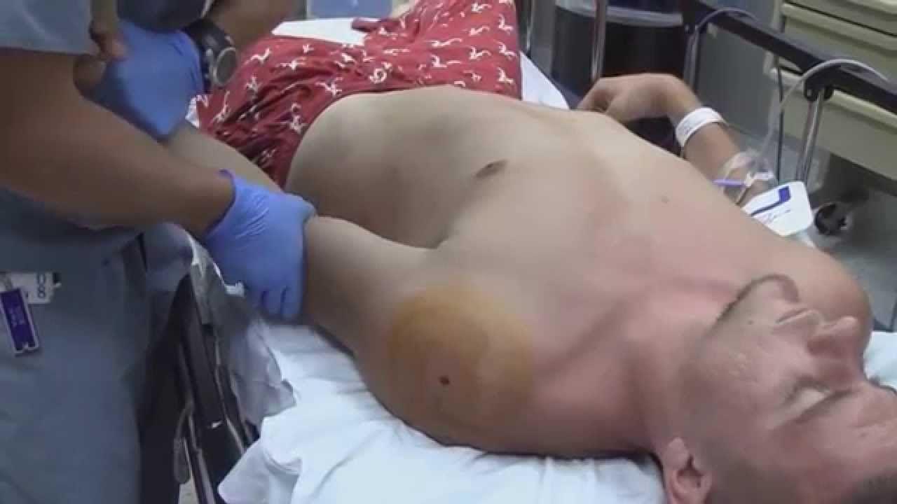 27+ Shoulder Dislocation Emergency