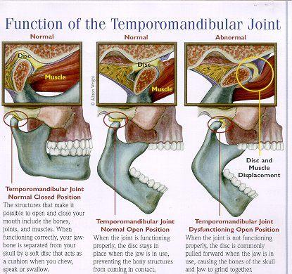 Bracing Myself Spell Saab Temporomandibular Joint Disorders