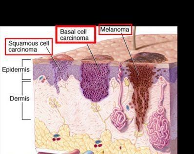Image result for squamous cell carcinoma vs basal cell carcinoma