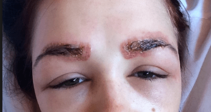 Nickel Reaction And Allergy To Microblading Microblading Allergies Permanent Makeup