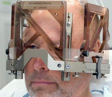 Stereotactic Head Frame | Folding Fetish | Pinterest