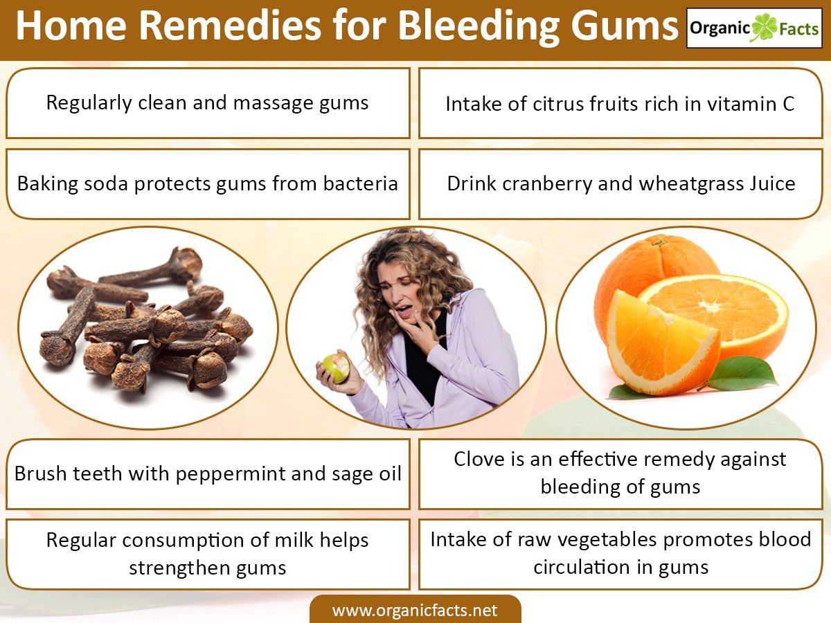 Home Remedies For Bleeding Gums Include Citrus Fruits Milk Raw Vegetables Baking Soda Cloves Clove Oi Healthy Grocery List Gum Disease Remedies Gum Health