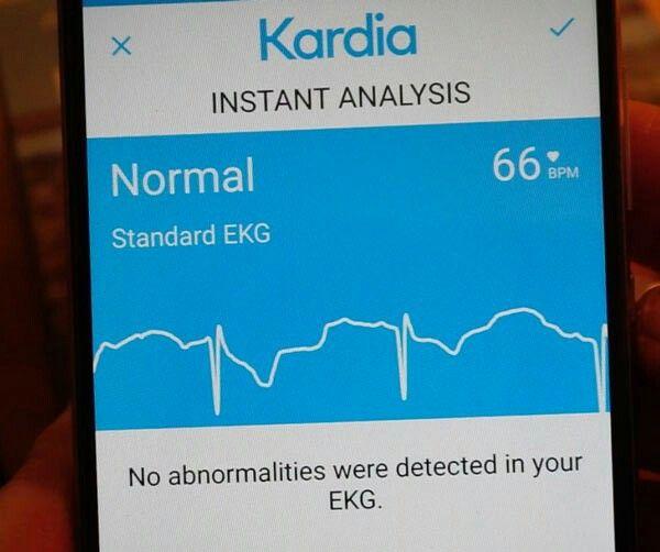 Kardia Mobile portable ECG / EKG sensor  A medically