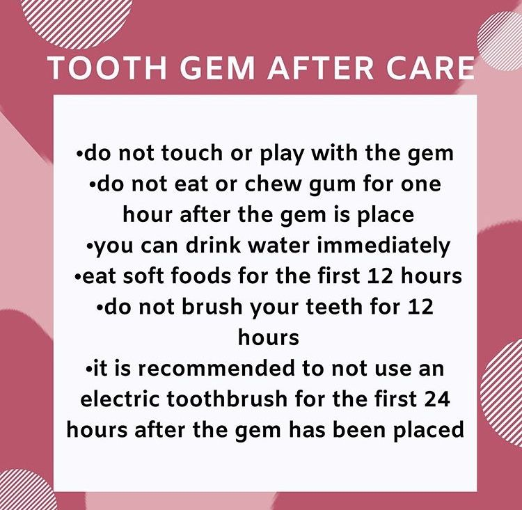 TOOTH GEM AFTERCARE INSTRUCTIONS Do not touch or play with