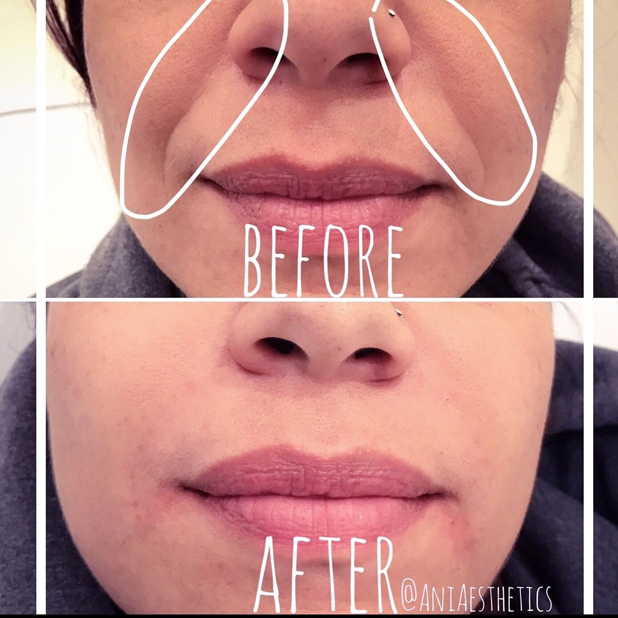 Before and after dermal fillers to get rid of smile lines | health