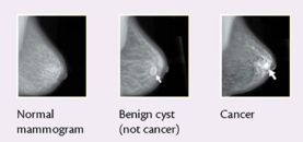 Calcium deposits on the breast