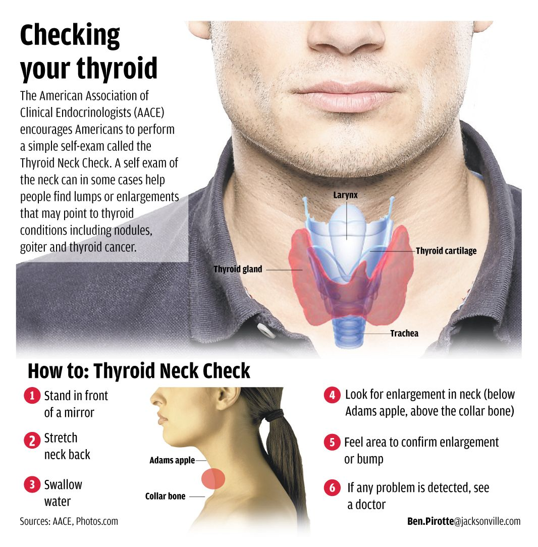 how to know whether you have an underactive thyroid