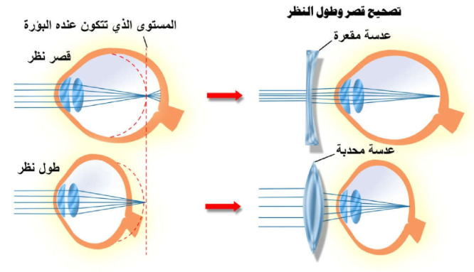 Pin By Chemistry On الحيوية In 2021 Vision Disorders Map Screenshot Map