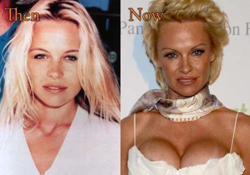 pamela anderson plastic surgery before and after pamelaanderson