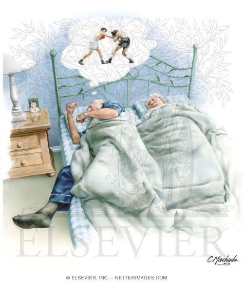 REM søvn atferdsforstyrrelse; RBD. Årsak ukjent; kan skyldes degenerering av hjerneloci som er  involvert i aktiv inhibisjon av motorisk input til ryggmargen under REM-søvn. Komorbid med nevrodegenerative lidelser som Parkinson, Lewy-legeme demens, Downs syndrom,  multippel systematrofi, narkolepsi, multippel sklerose. RBD som første manifestasjon/predikativ av begynnende nevrodegenerativ lidelse. Symptomer kan utløses av medikamentell REM-suppresjon: SSRI, TCA, MAOi.
