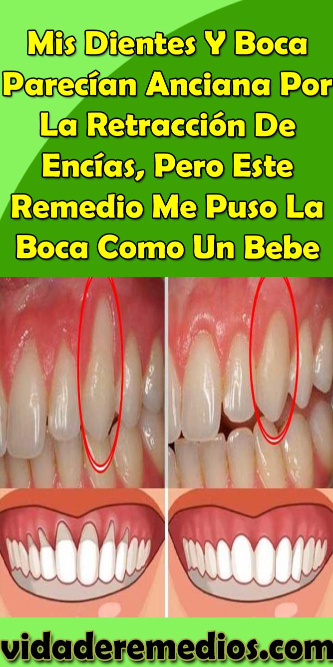 Mis Dientes Y Boca Parecían Anciana Por La Retracción De Encías Pero Este Remedio Me Puso La Boca Como Un Bebe Dientes Boc Diy Remedies Beauty Oral Hygiene