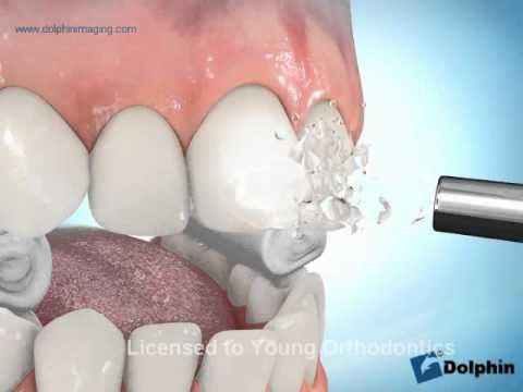 How Orthodontic Braces are put on teeth. Young Orthodontics - YouTube