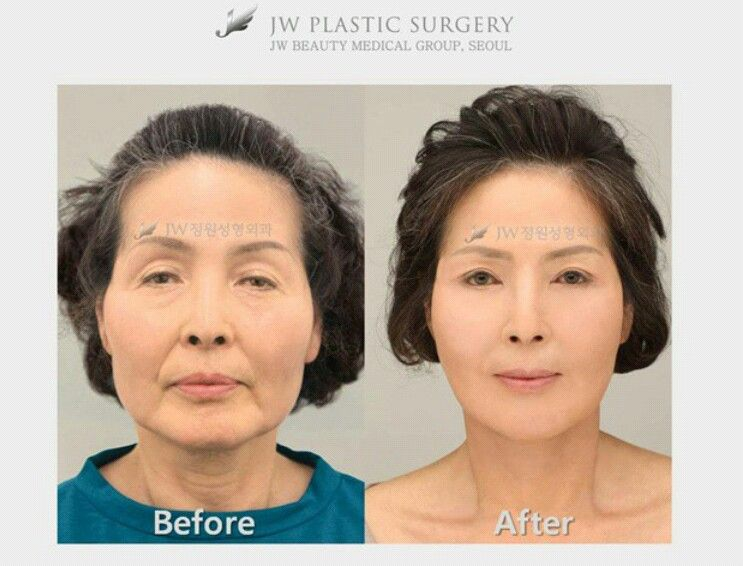 Pin on before and after real story in jw
