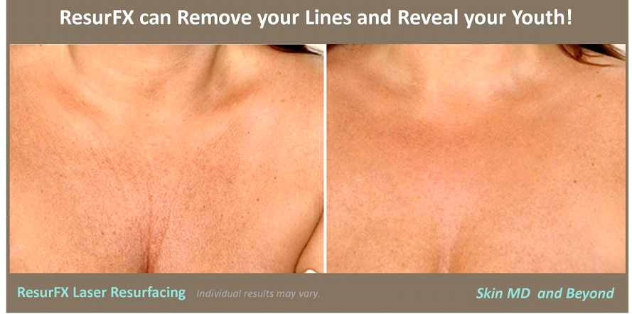 Laser Resurfacing ResurFX | Laser resurfacing, Skin md ...