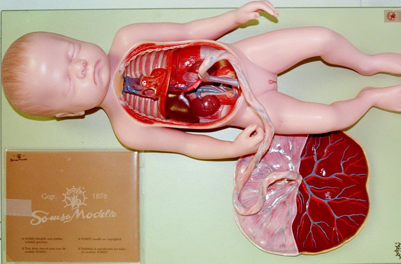foramen ovale in the fetal heart - Google Search | ob/gyn | Pinterest