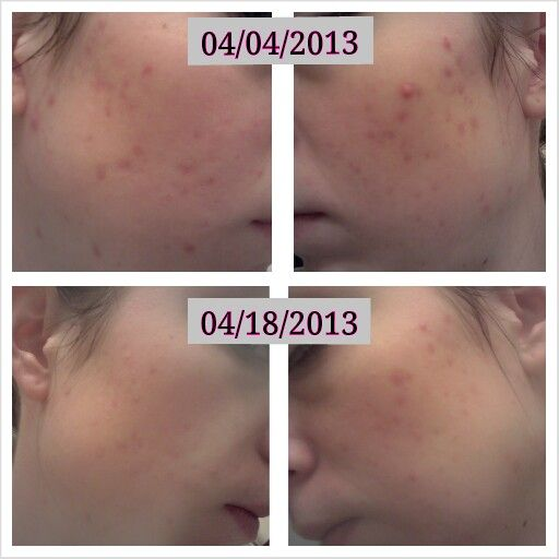 msm acne before and after