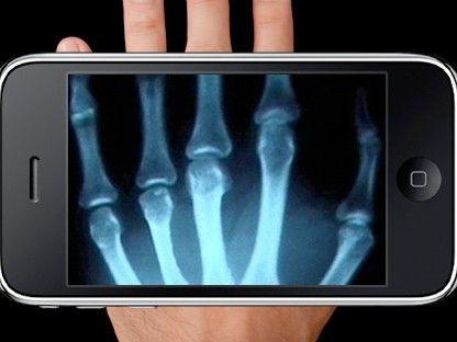 Aplicacion de rayos x Tecnologia, App iphone, Nuevas