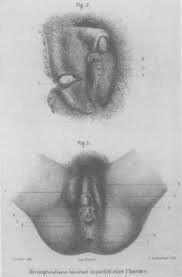 Herculine Barbin, de nacionalidad francesa, se desempeñó como institutriz en el siglo XIX. Después de realizado un examen médico, que la determinó como varón, fue obligada a su persona a utilizar las prendas masculinas correspondientes. Herculine escribió sus memorias y se suicidó inhalando gas. Sus memorias abarcan su intersexualidad.