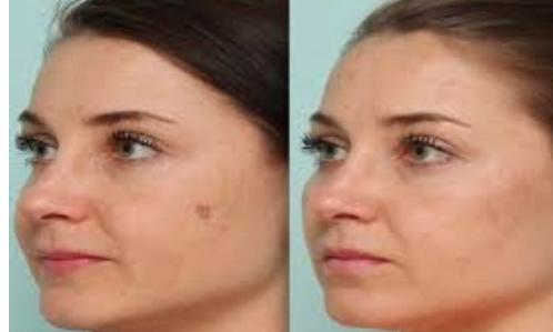 مدونة خواطر كيفية التخلص من البقع البنية في الوجه Spots On Face Dark Spots On Face Brown Spots On Face