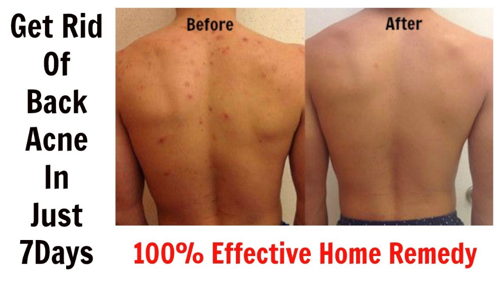 3 Best Remedies For Back Acne With Images Diy Acne Treatment Back Acne Remedies Back Acne Treatment