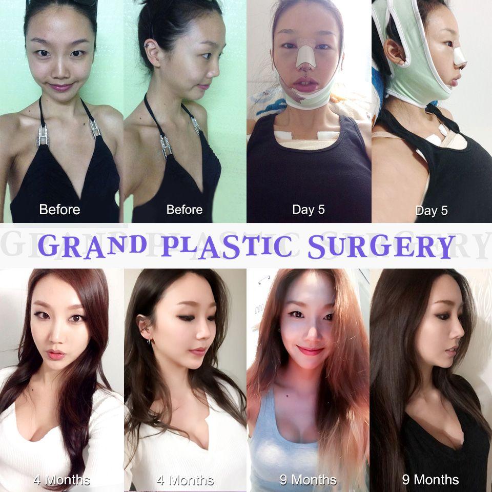 S Line Rhinoplasty Grand's Make-over! 1...