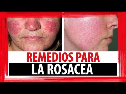 7 Remedios Naturales Para La Rosacea Youtube Rosacea Acne Treatment Acne Rosacea Rosacea Causes
