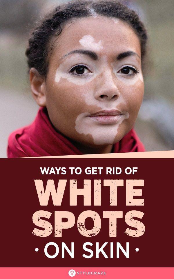 21 Natural Ways To Get Rid Of White Spots On Skin (Vitiligo): Having white…